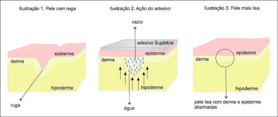 adesivo antisinais para a área do colo Supérbia